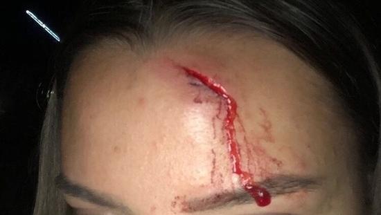 В Анапе нашли мужчину, который разбил голову работнице тира